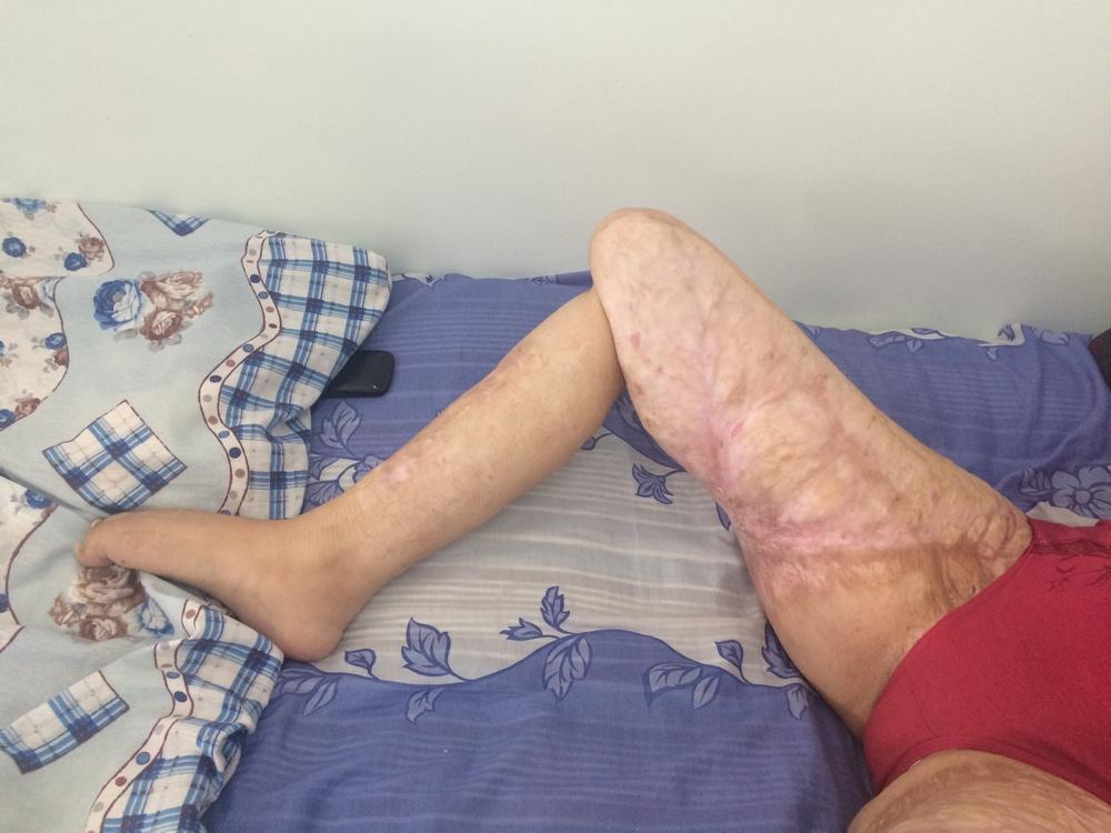 лечение суставов народными средствами после перелома
