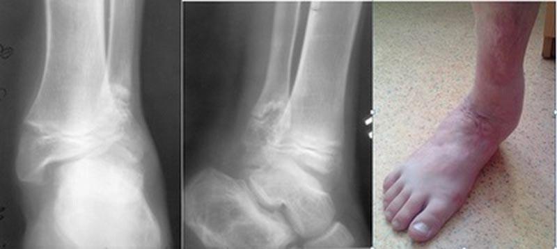 Посттравматическая суставная боль артрит правого лучезапястного сустава
