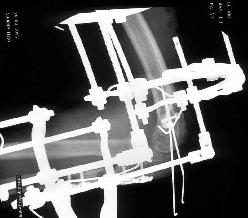 Перелом лучевой кости аппарат илизарова