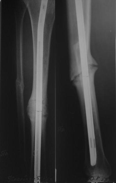 Ложный сустав рисунок можно ли приседать при артрозе коленных суставов