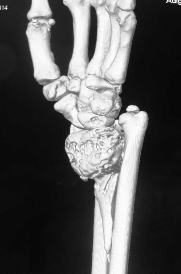 Артроскопия коленного сустава стационар положено койкодней ортез на голеностопный сустав с ребрами жесткости