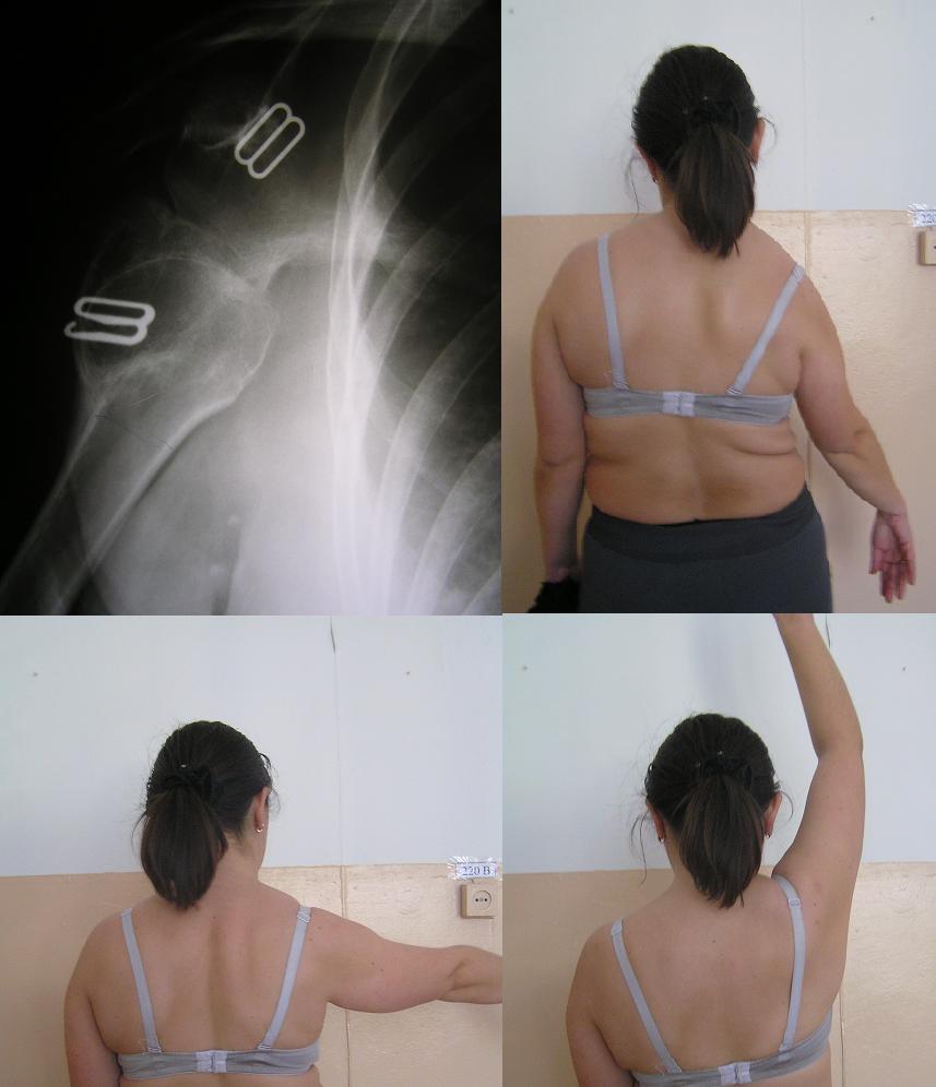 схема перевязки плечевого сустава
