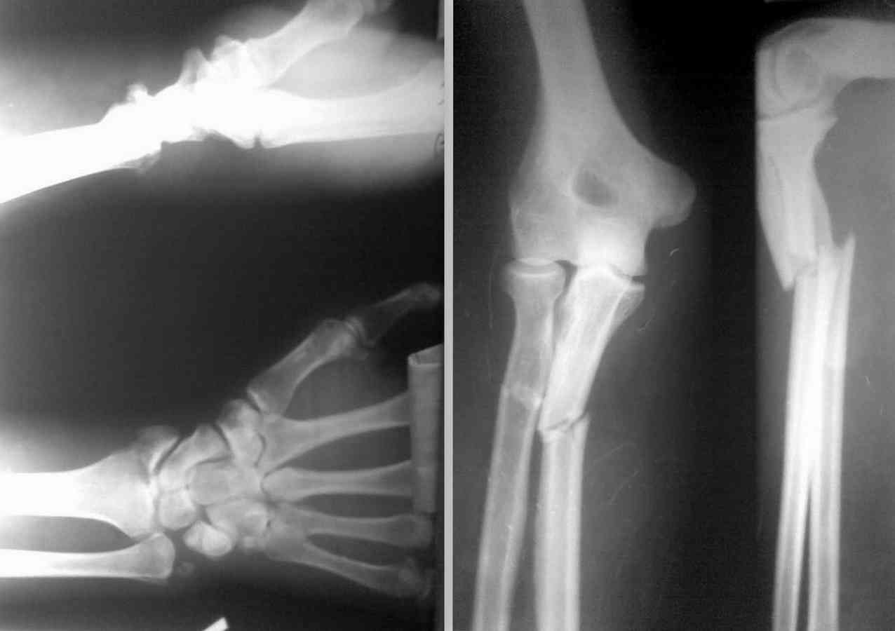 Комплекс остеолайн для лечения суставов опорно-двигательного аппарат лечение воспаления челюстного сустава народными средствами