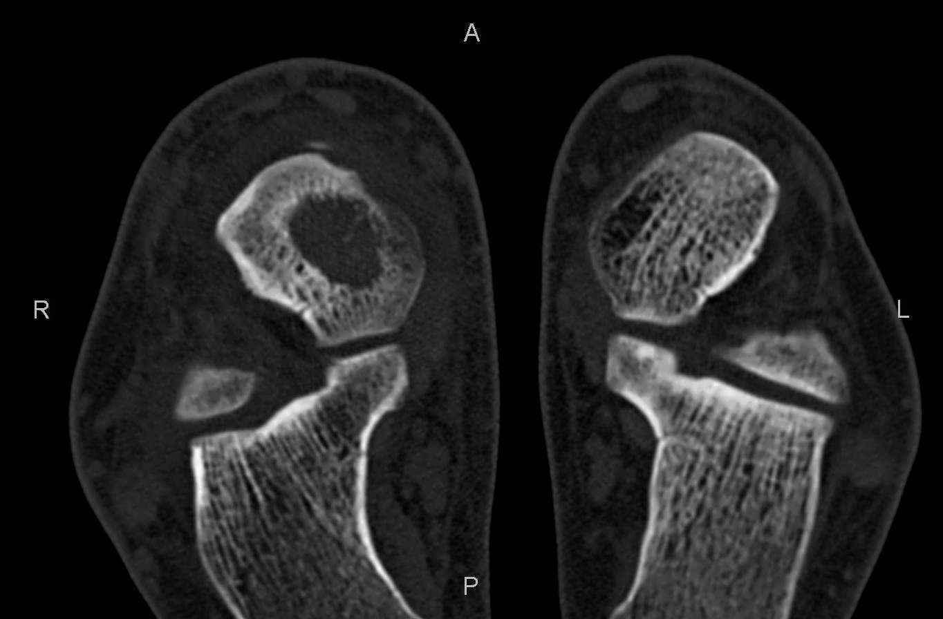 Как определить артроз торение пяточного сустава по снимку дисплазия локтевого сустава у собак лечение