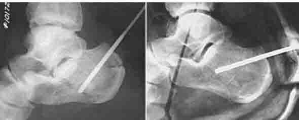 Как определить артроз торение пяточного сустава по снимку код мкб артроз тазобедренного сустава