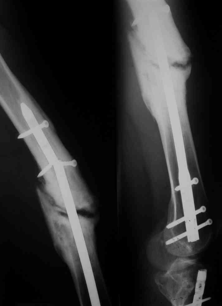 Артроскопия коленного сустава стационар положено койкодней вывихи суставов реферат