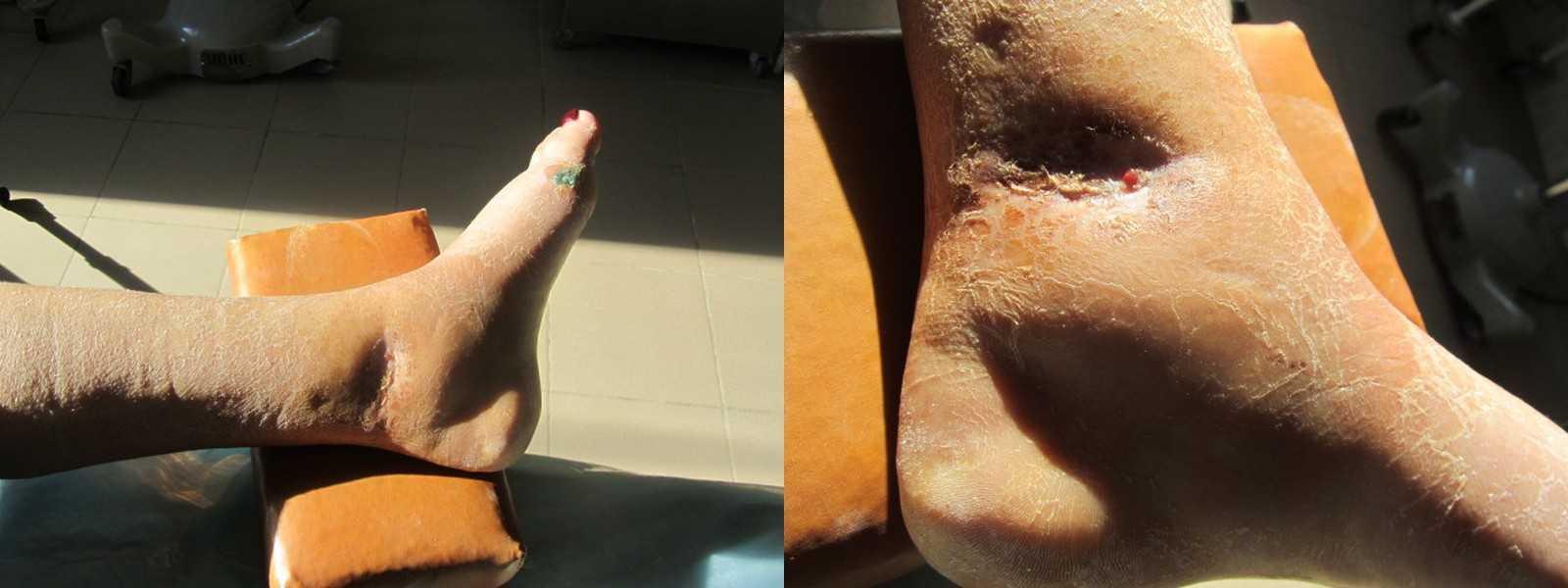 Наступил на ногу после операции